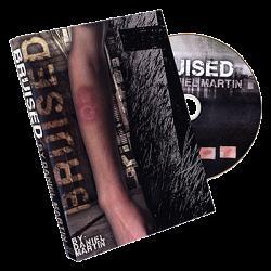Bruised by Daniel Martin  - Trick